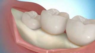 San Jose Oral Surgery impacted Teeth Extraction